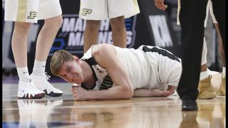 Could Purdue star Haas play through broken elbow in NCAAs?