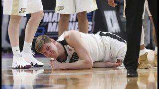 Could Purdue star Haas play through broken elbow in NCAAs?