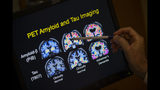 FILE - In this May 19, 2015, file photo, a doctor points to PET scan results that are part of a study on Alzheimer's disease at a hospital in Washington. Scientists know that long before the memory problems of Alzheimer's become obvious, people experience more subtle changes in their thinking and judgment. (AP Photo/Evan Vucci, File)