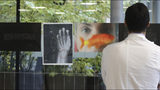A doctor looks at a a photograph and an x-ray of a woman's broken wrist displayed during the exhibition 'Invisibility is not a super power' which includes x-ray's of anonymous women who arrived at the hospital's emergency room claiming to be victims of violence, at the San Carlo Hospital, in Milan, Italy, Friday, Nov. 22, 2019. The exhibition, a combination of photographs and x-rays, was promoted on the occasion of the International day for the Elimination of Violence Against Women which takes place on Nov. 25. (AP Photo/Luca Bruno)